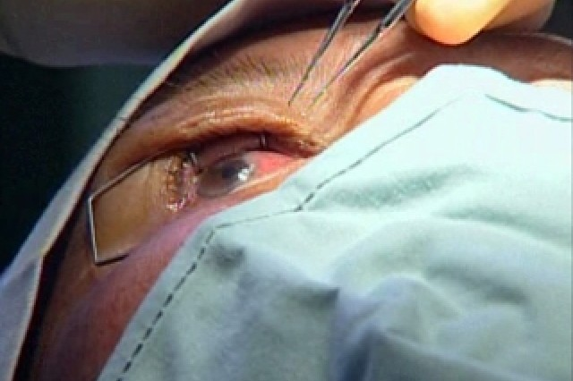 Ophthalmologist Work