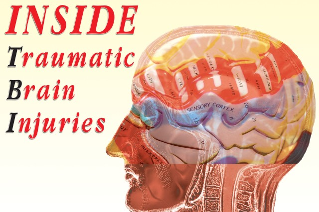 Traumatic Brain Injury Center: Blows to the head an injury, not a mental illness