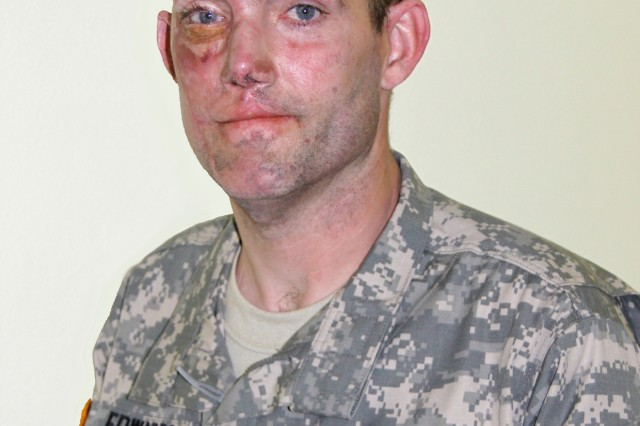 Year of the NCO: Wounded warrior embodies meaning of leadership