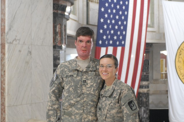 Soldier's life-altering injury turns into unique war love story