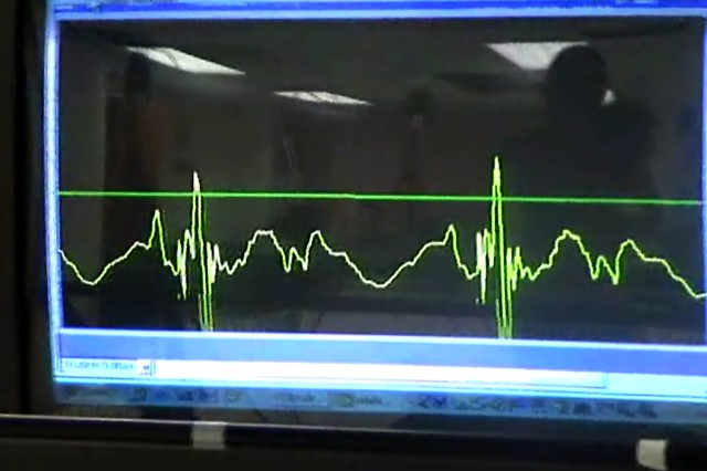 An output reading from the accelerometer appears on a monitor in front of the treadmill, showing a runner her tibial acceleration relative to a threshold prescribed by researchers.  The green line across the middle of the output monitor provides a target goal for the subject.