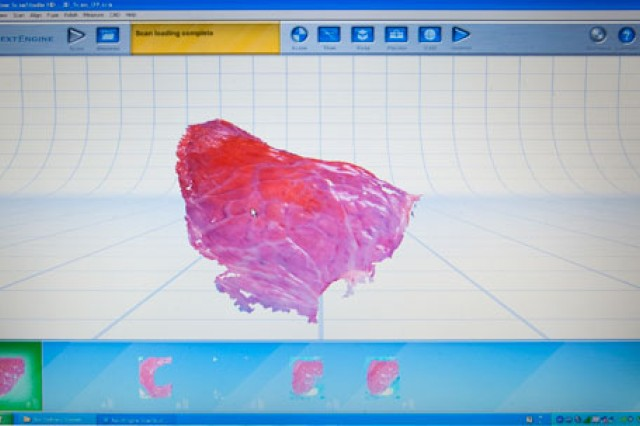 "A laser scans the wound, so that a ""map"" can be created to direct the printer precisely where to place each cell type."