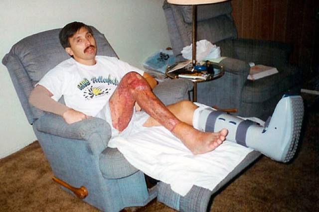 Now-retired Chief Warrant Officer 4 Dan Laguna recovers from his helicopter crash at home in 1995 after months in the hospital. His legs were so damaged, he had to learn a new way to walk by using his toes.