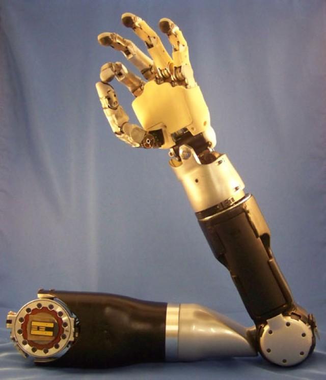 DARPA's Modular Prosthetic Limb