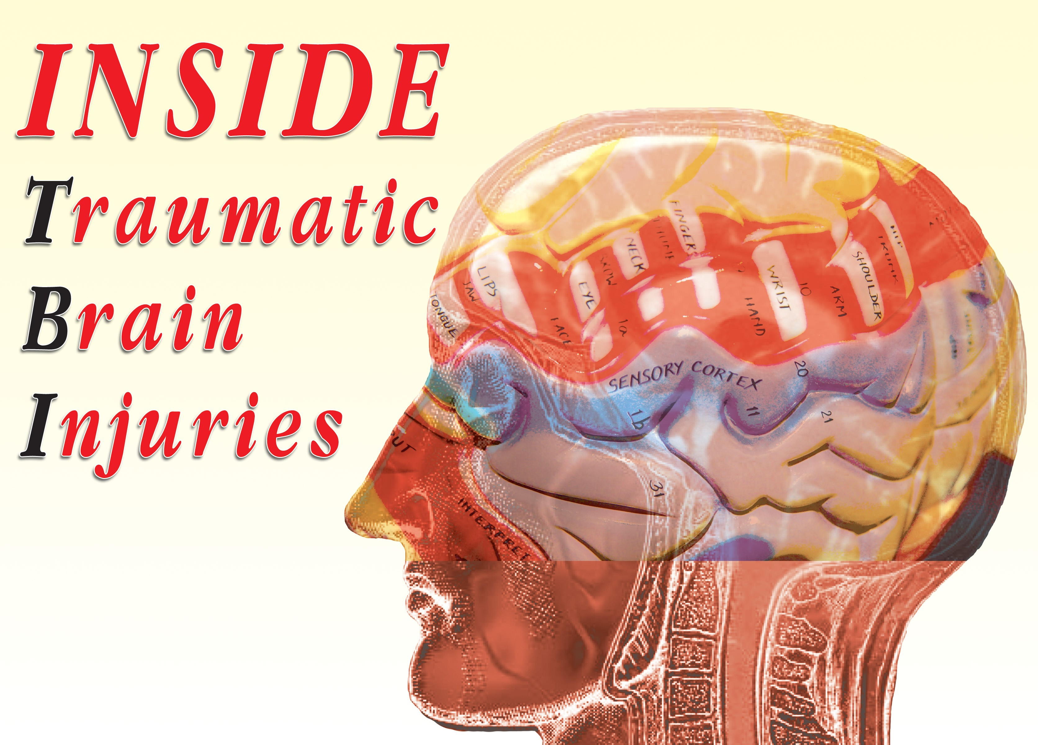 traumatic brain injury pdf 2012