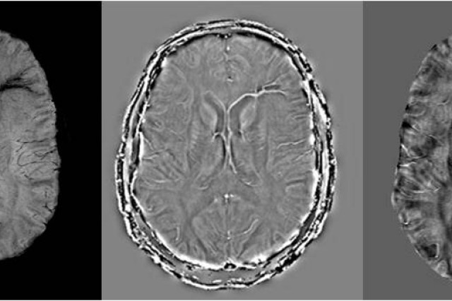 A new dimension in imaging technology detects minute levels of vascular damage in the form of bleeding, clots and reduced levels of oxygenation that may better illuminate our understanding of brain injury, particularly related to trauma. Pictured here is a mild traumatic brain injury case in the presence of both blast and subsequent traumatic brain injury. The left septal vein and medullary veins draining into it both show abnormal signal representing either iron deposition, increased levels of deoxyhemoglobin, or both. Left image: SWI data. Middle image: SWI filtered phase. Right image: SWIM data showing quantified iron content.