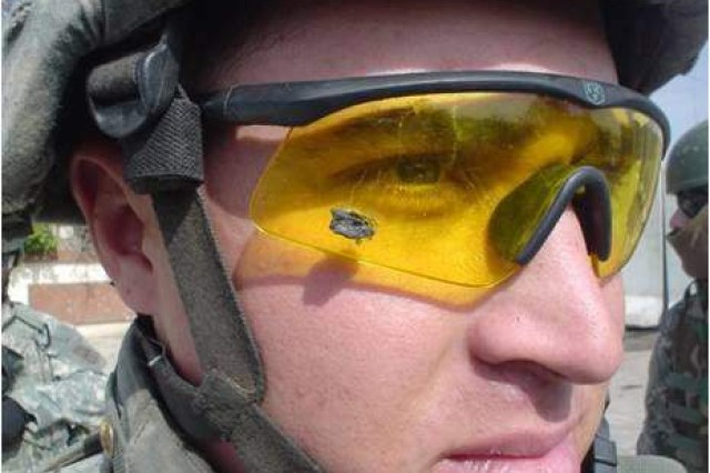 A Soldier wears protective eyewear, which prevented injury from shrapnel. Despite widespread implementation of combat eye protection, trauma to the eye and its associated structures account for a significant number of combat-related injuries, according to a book on combat casualty care published by the Army in 2012.