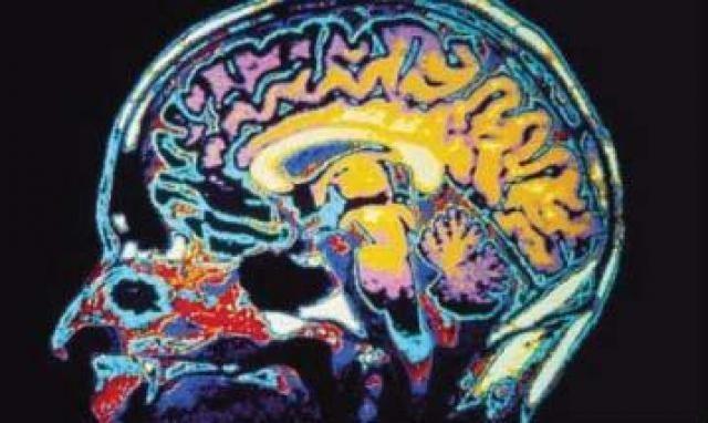 circulação no cérebro
