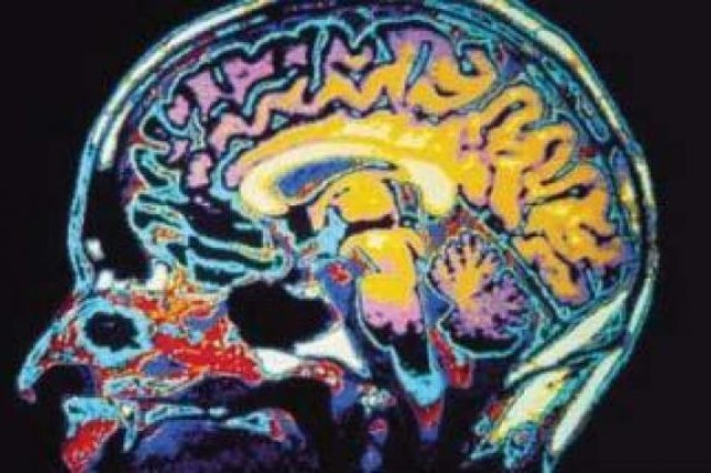Brain function increased with haritaki research indicates