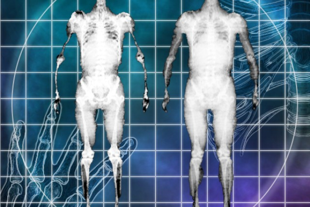 Scientists from the U.S. Army Research Institute of Environmental Medicine, or USARIEM, have developed virtual X-ray images of avatars, like the two dual-energy X-ray absorptiometry scans pictured above, to better customize avatars to warfighters' physical makeup. (Photo illustration: Mallory Roussel)