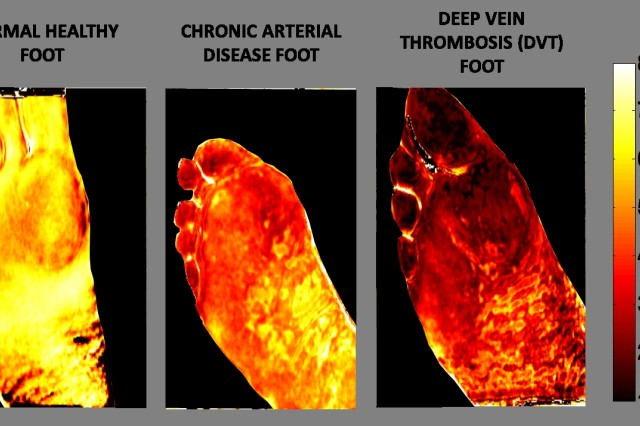 The images of an affected burn area produced by an SFDI surgical camera show parameters such as oxygen saturation, water content and total hemoglobin.