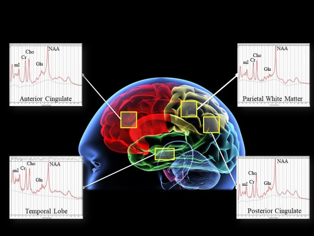 Brain scan of research into Soldier performance