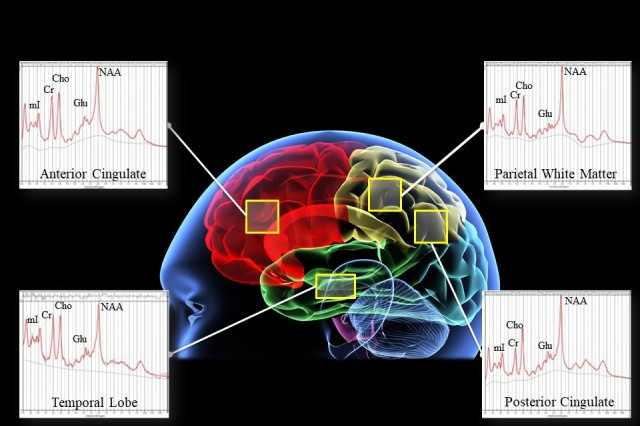 This diagram provides an example of brain chemical spectra in specific regions of interest for a U.S. Army Research Institute of Environmental Medicine (USARIEM) study on the chemical bio-markers associated with mild Traumatic Brain Injury (TBI) and Post Traumatic Stress Disorder (PTSD).