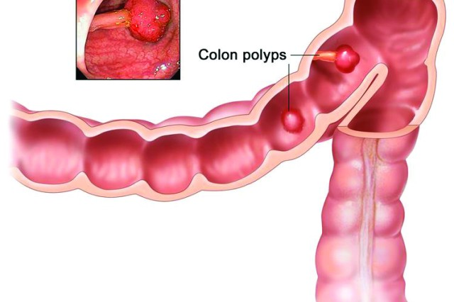 Polyps in the colon. Some polyps have a stalk and others do not. Inset shows a photo of a polyp with a stalk. (Illustration by Terese Winslow, courtesy of cancer.gov)
