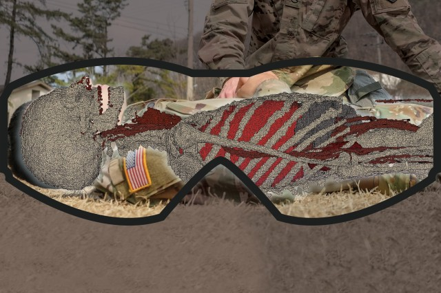 Scientists from the U.S. Army Research Institute of Environmental Medicine are partnering with medics from the Farrelly Health Clinic, Fort Riley, Kansas, and the Texas Army National Guard to develop Augmented Reality surgical visualization software, which could potentially be used as an alternative for medical imaging on the battlefield. As shown in the illustration, this software would maximize medics' potential in Multi-Domain Operations by allowing medics to look at a patient's internal anatomy, as if they had X-ray vision.