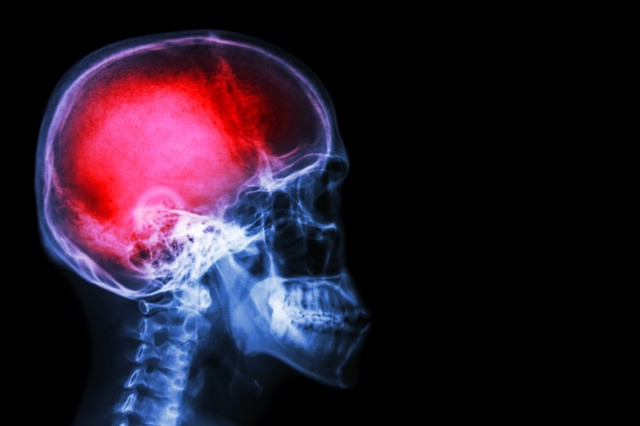 Before the findings of a new study, scientists assumed the source of brain swelling was exclusively the result of fluid from blood.